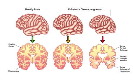 Alzheimer's disease progression Illustration