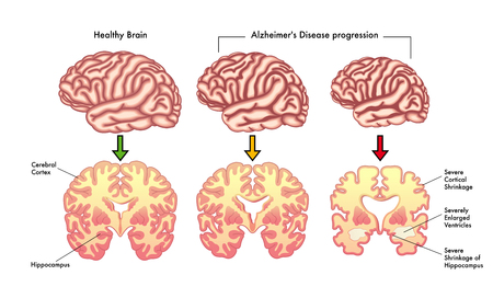 Alzheimer's disease progression Stock Illustratie