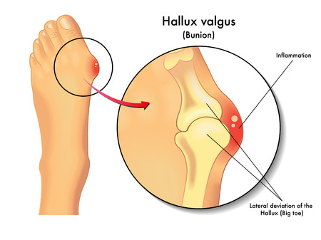 big toe: hallux valgus