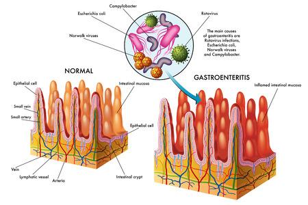 unwashed: gastroenteritis