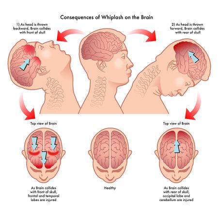 脳にむち打ち症の影響  イラスト・ベクター素材