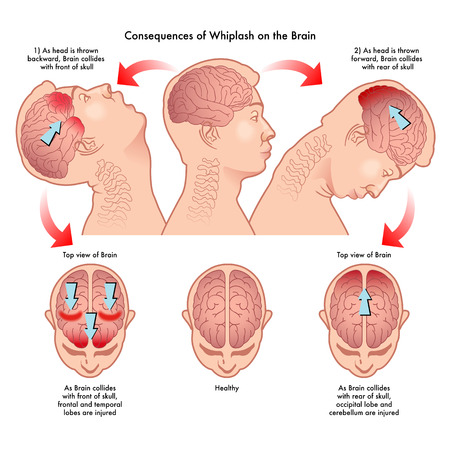 Consequences of whiplash on the brain Stock Illustratie