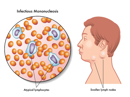 lymph: mononucleosis