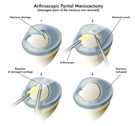 Arthroscopic Partial meniscectomy Imagens - 65853072
