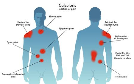 location of pain in the various forms of calculosis Imagens - 74182354
