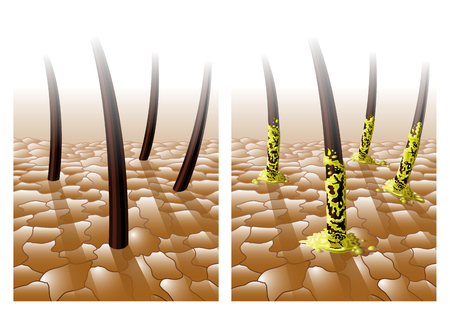 Greasy hair disease