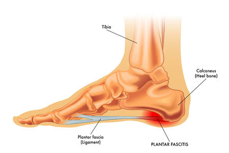 repetitive: Plantar fascitis