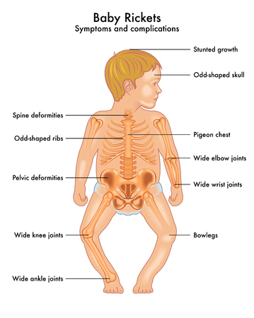 Baby Rickets Illustration