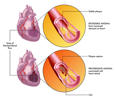 Effects of reversible and progressive angina Illustration