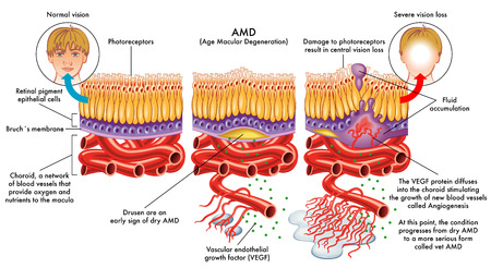 age macular degeneration Vettoriali