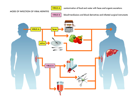 Mode of infection of viral hepatitis. Illustration