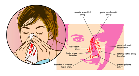 Symptoms of epistaxis