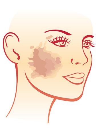 Symptoms of melasma Illustration