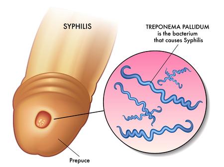 symptoms of syphilis Illustration
