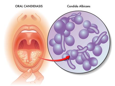 symptoms of oral candidiasis