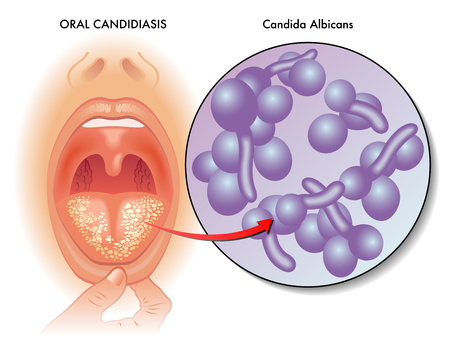 symptoms of oral candidiasis
