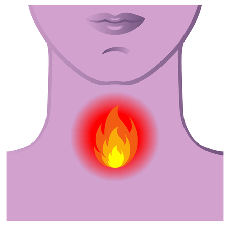 Symbolic medical illustration of the symptoms of burning throat Ilustração