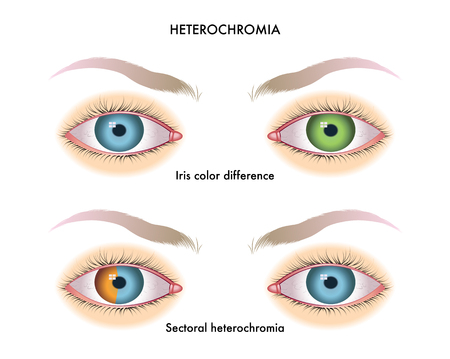 Symptoms of heterochromia on white background, vector illustration.