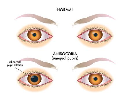 等しくない生徒と呼ばれる瞳孔不同の症状  イラスト・ベクター素材