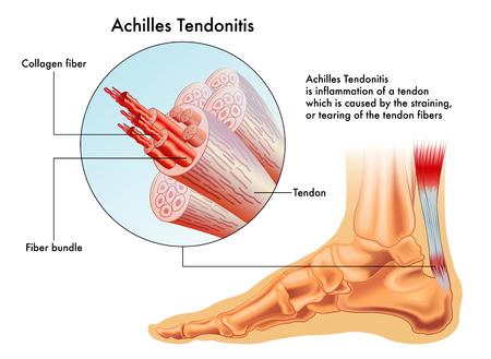 Objawy ścięgna Achillesa Ilustracje wektorowe