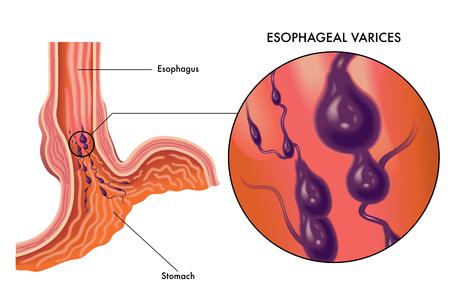 Medical vector illustration of symptoms of esophageal varices Иллюстрация