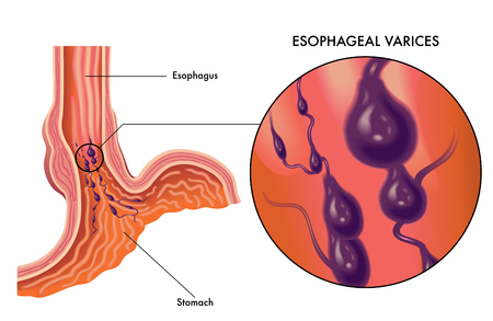 Medical vector illustration of symptoms of esophageal varices Illustration