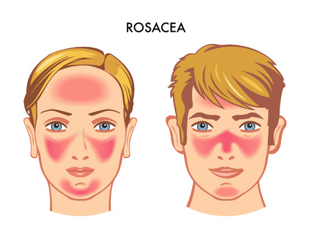 Vector medical illustration of the symptoms of rosacea. 일러스트
