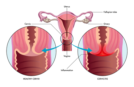 vector medical illustration of the condition cervicitis showing healthy cervix versus one with inflammation