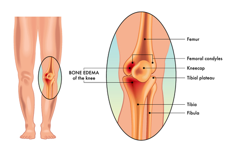 A vector illustration of the symptoms of a bone edema on a knee