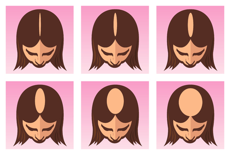 vector illustration of the female alopecia or hair loss Çizim