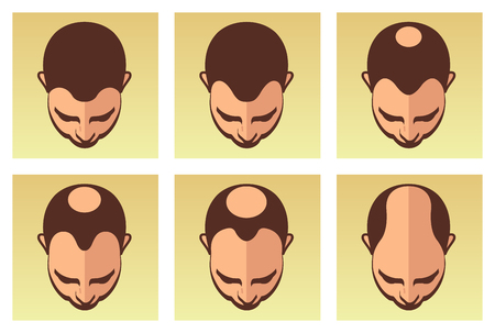 A vector illustration showing different stages of evil hair loss Imagens - 104190586