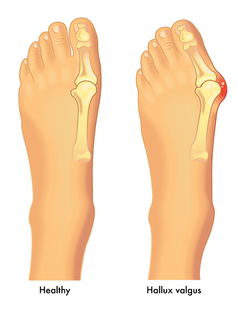 Medical vector illustration of a healthy foot in comparison to a foot affixed by hallux valgus Illusztráció