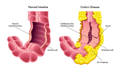 Vector illustration of a section of a normal intestine compared to a section of a disease of the Crohns disease Ilustração