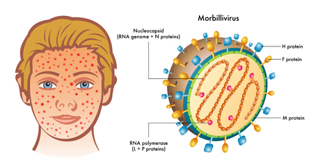 Cutaway labelled diagram of Morbillivirus with illustration of boy showing symptoms on face, white background.