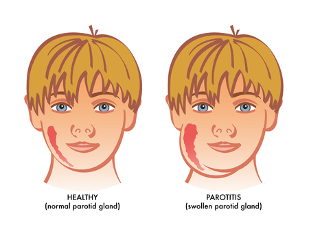 A vector medical illustration showing a healthy child next to a suffering from parotitis or inflammation of parotid glands.