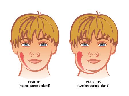 Un'illustrazione medica vettoriale che mostra un bambino sano accanto a una sofferenza da parotite o infiammazione delle ghiandole parotidee.