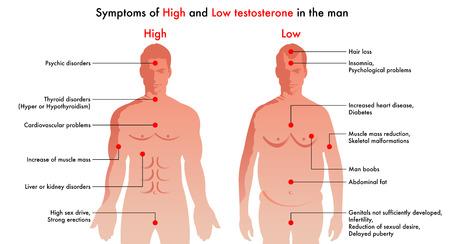 Ilustración de diagrama vectorial que muestra los síntomas médicos y las consecuencias de la testosterona en los hombres.