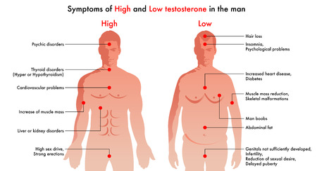 Vector diagram illustration showing the medical symptoms and consequences of testosterone in men. Иллюстрация