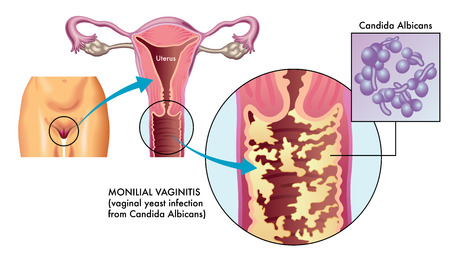 medical illustration of Monilial vaginitis, a vaginal yeast infection caused most commonly by the human fungal Candida albicans