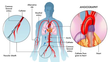 Labeling illustration of coronary angiography on white, white background.