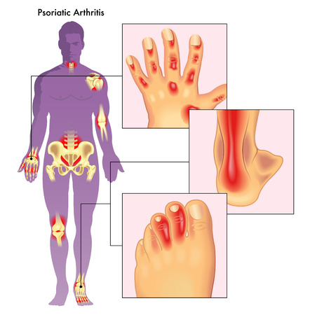 Medical illustration showing which parts of the body can be affected by psoriatic arthritis, with some of these parts in the foreground.