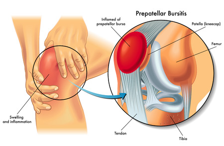 Medical illustration showing anatomy of prepatellar bursitis condition of the human knee.
