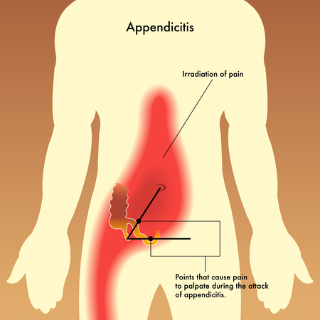 medical illustration showing the points that cause pain to palpate during the attack of appendicitis.