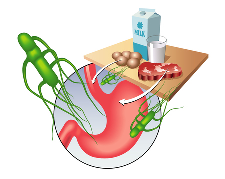 Medical illustration showing the salmonella virus and the main contaminated foods.