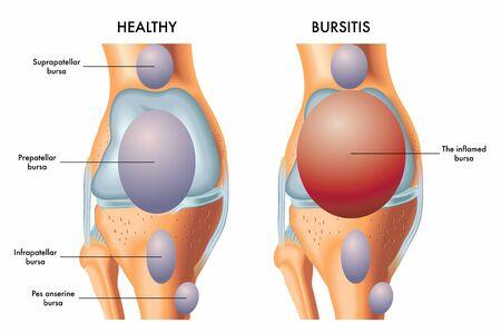 Une illustration médicale d'un genou avec une bourse prépatellaire enflammée par rapport à un genou sain. Vecteurs