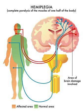 Detailed anatomical illustration of medical condition called Hemiplegia.
