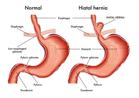 Ilustración médica de estómago con hernia de hiato con anotación. Ilustración de vector