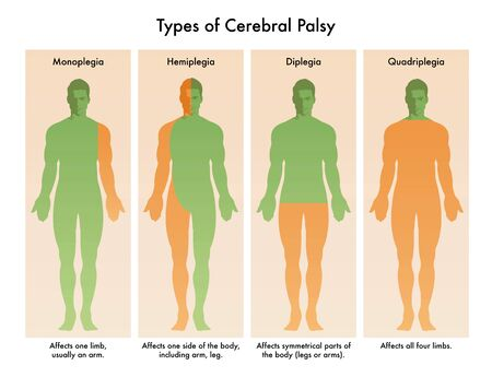 Forms of Cerebral Palsy illustrated in medical diagram. Stock Illustratie