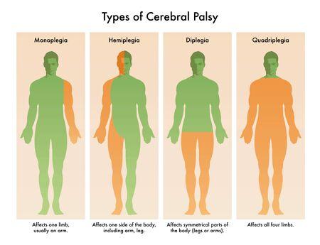 Forms of Cerebral Palsy illustrated in medical diagram. Illustration
