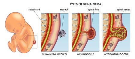 Medical illustration of infant spina bifida with annotation.